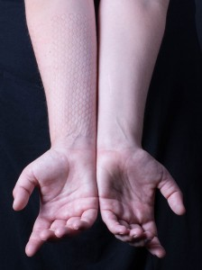 skindeep_arm_both_pattern