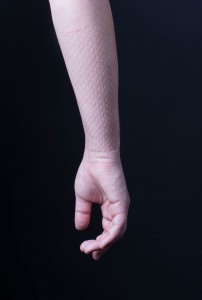 skindeep_arm_pattern